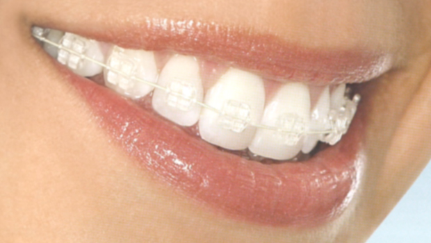 Paris Orthodontics: 8 Steps to Straighten Teeth
